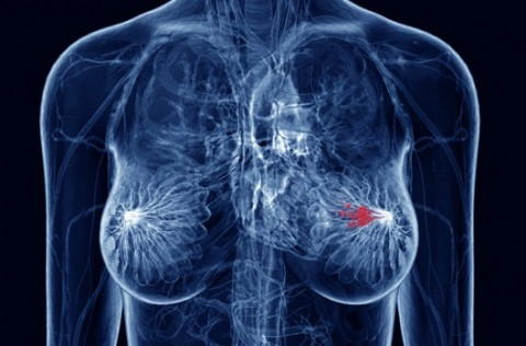 Recognizing And Battling Breast Cancer