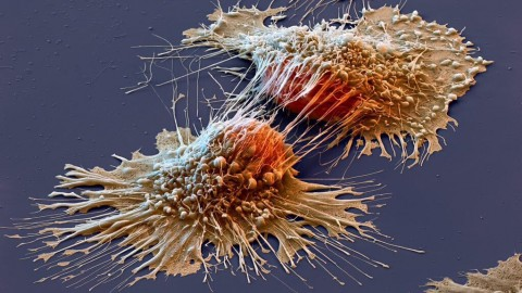 Cervical Cancer: Relying on Pap Smears Alone for Cancer Prevention Can Kill You