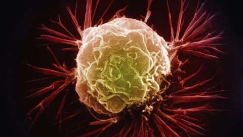 All of Us Have Cancer Cells in Our Bodies